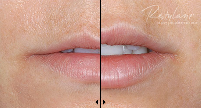 Before and After photos of Restylane
