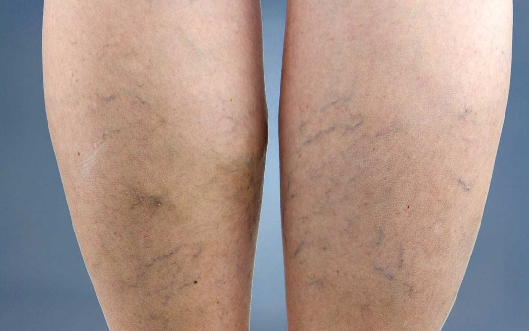 Is There a Connection Between Varicose Veins and Cardiovascular Disease?